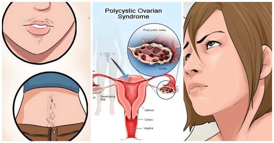 Polycystic Ovarian Syndrome Therapy In Hrs